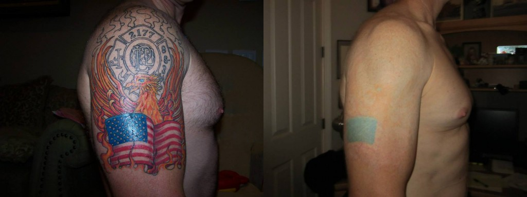 X Tattoo Removal 187 Befores Amp Afters